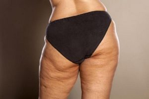 Getting Rid of Cellulite