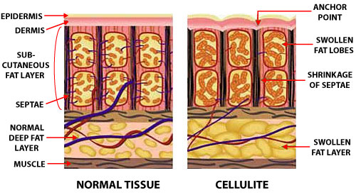 Normal Skin and Cellulite